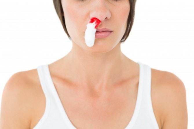 鼻にティッシュはNG!? 耳鼻科医に聞く、正しい鼻血の止め方