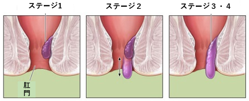 治療 疣 痔