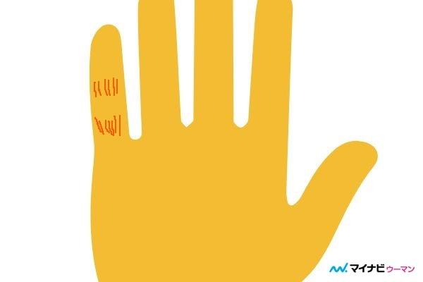 俵紋が小指にある「対人運がアップ」