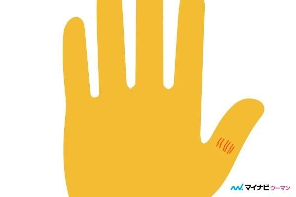 俵紋が親指にある「家庭運や健康運がよい」