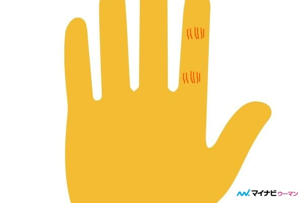 俵紋が人差し指にある「仕事運がよい」