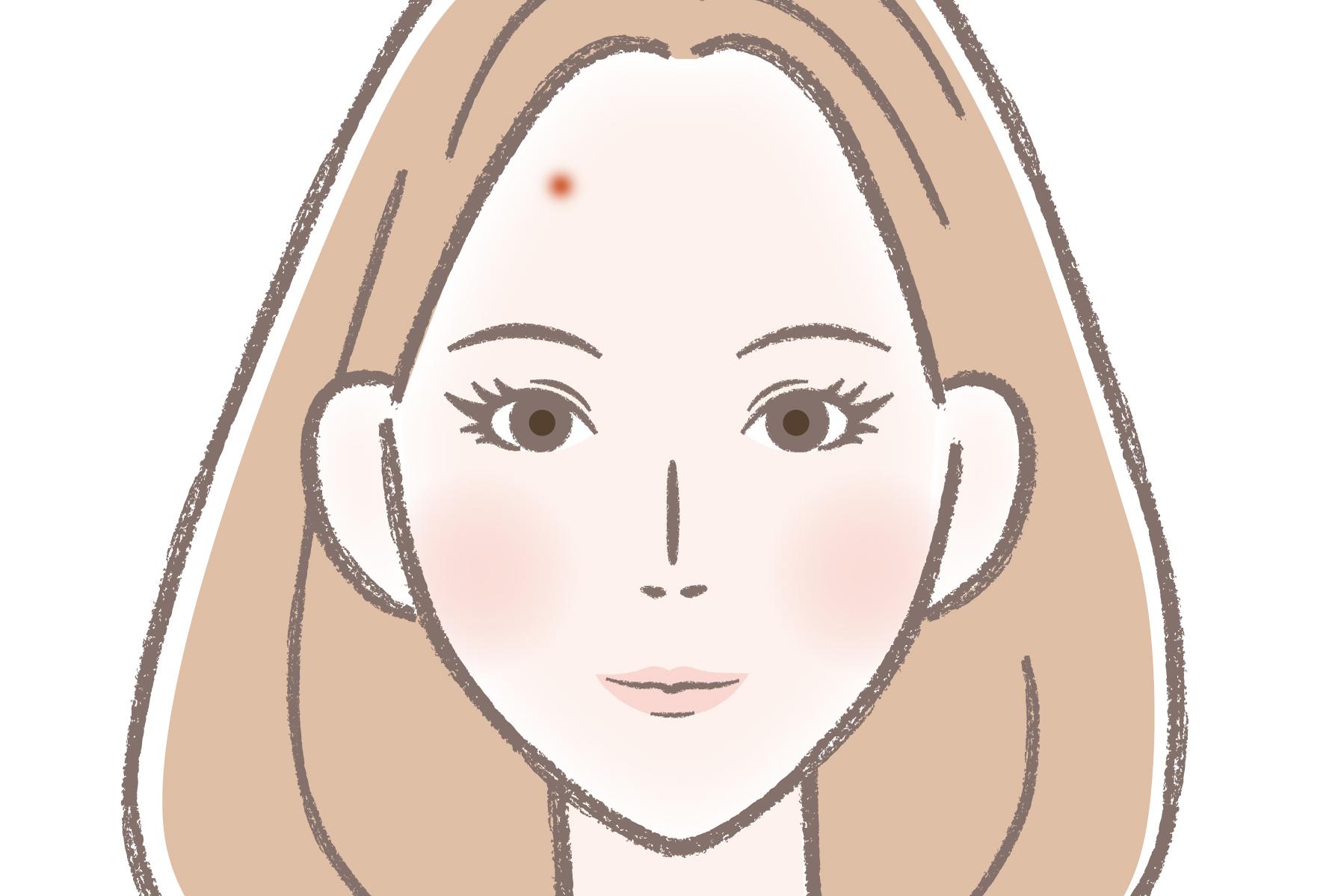 ニキビ 意味 の 眉間 鼻の下ニキビのスピリチュアル的意味は?眉間・左頬・眉毛の中の場合は?