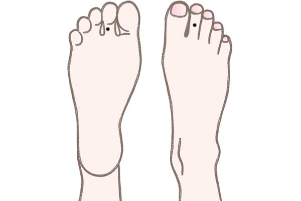 足の甲側と裏側のほくろの違い