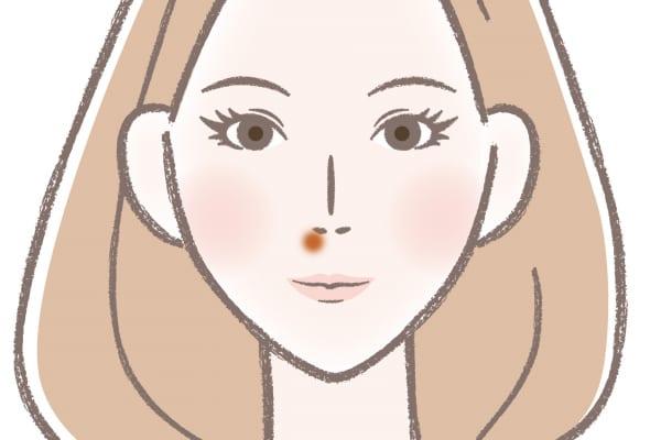 の ニキビ 鼻 の 下