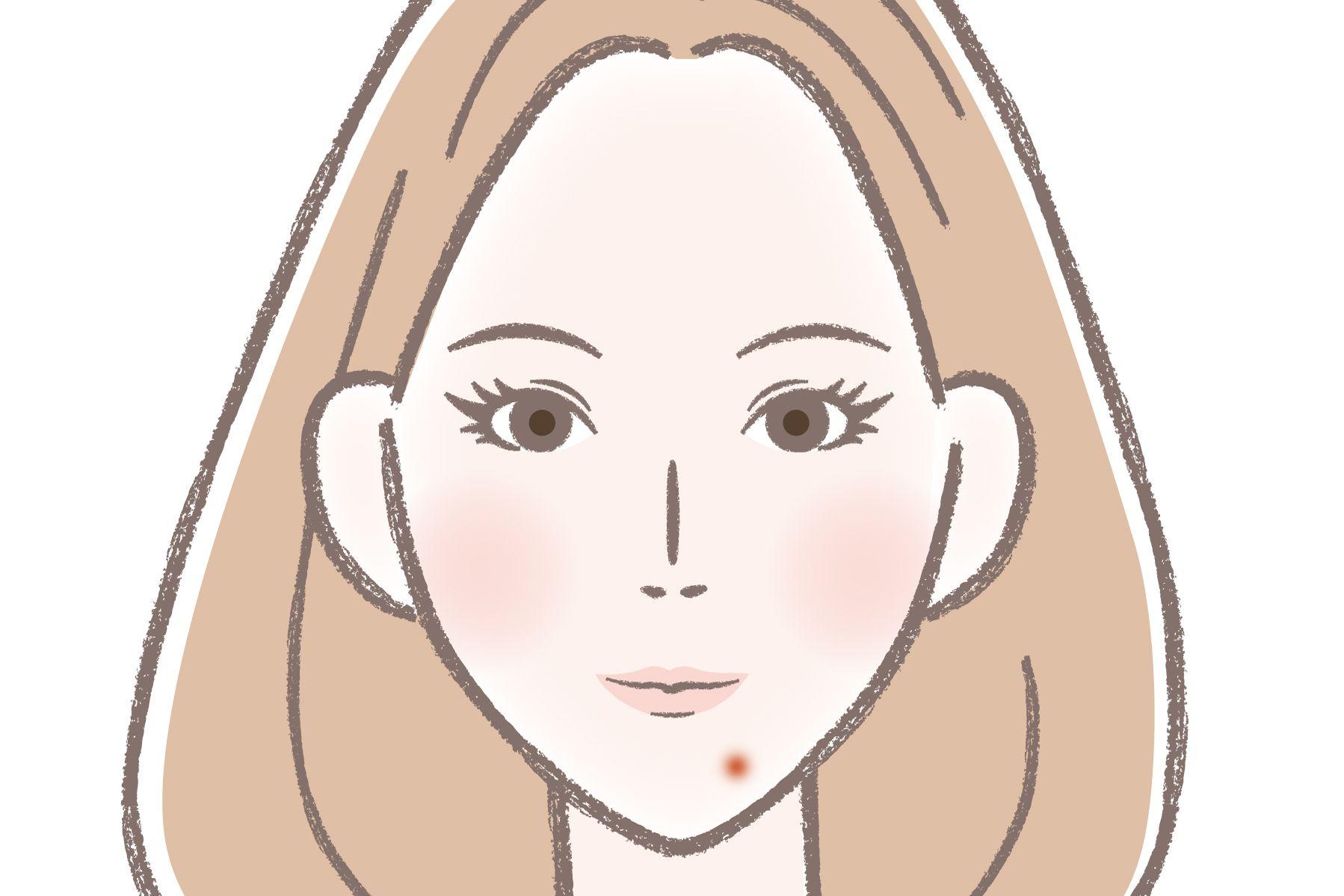 ニキビ 意味 顎