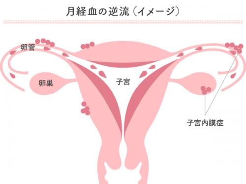 生理 中 の 性行為 子宮 内 膜 症